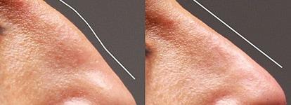 Fillers nasa