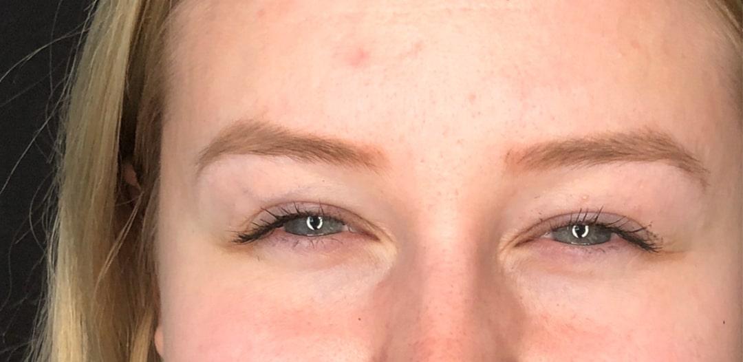Resultat efter behandling av argrynka