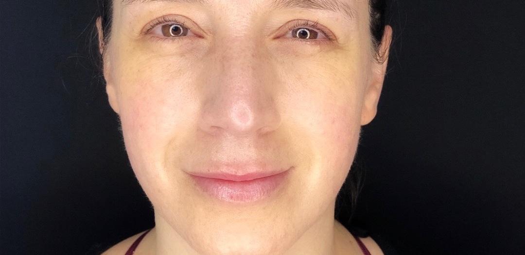 Resultat efter behandling med dermapen microneedling