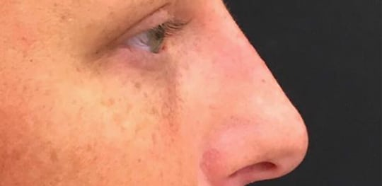 Resultat efter behandling av näsa med fillers