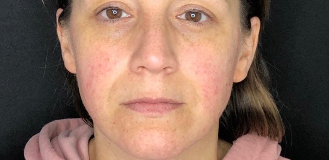 Före behandling med Dermapen Microneedling