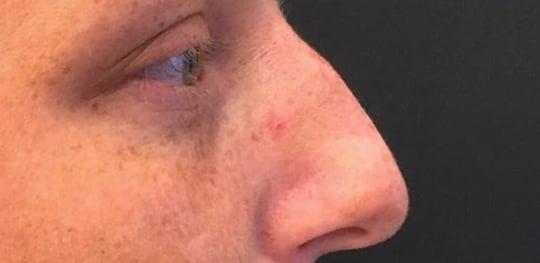 Före behandling av näsa med fillers