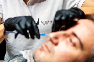 injektion med muskelavslappnande medel under en rynkbehandling på en manlig patient