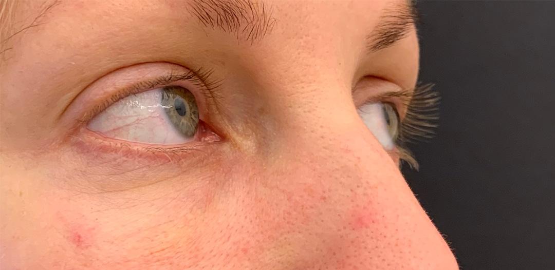 Resultat efter en Tear trough behandling