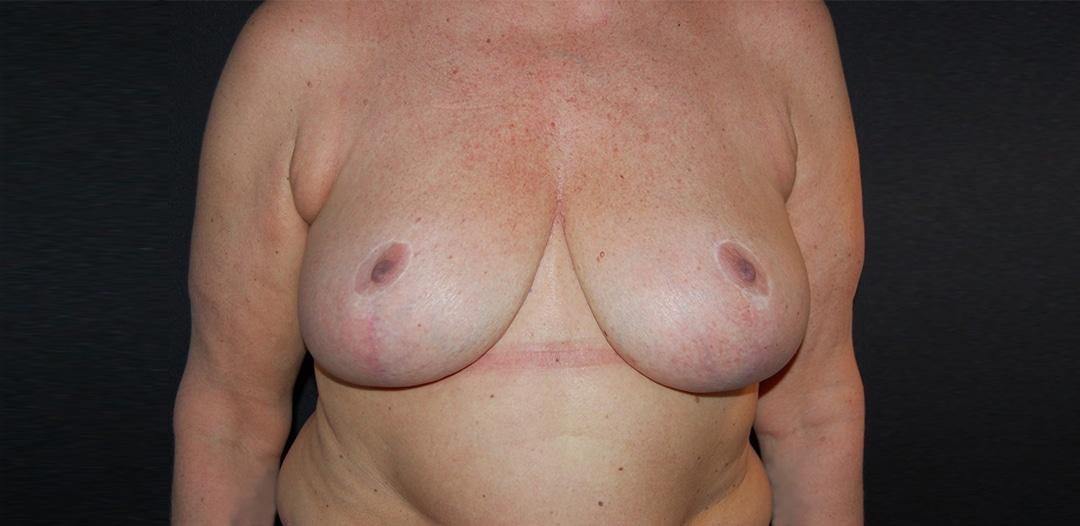 Kvinna 51 år, efter bröstreduktion 500 gr/sida. Besvär från nacke och axlar försvann efter operation.