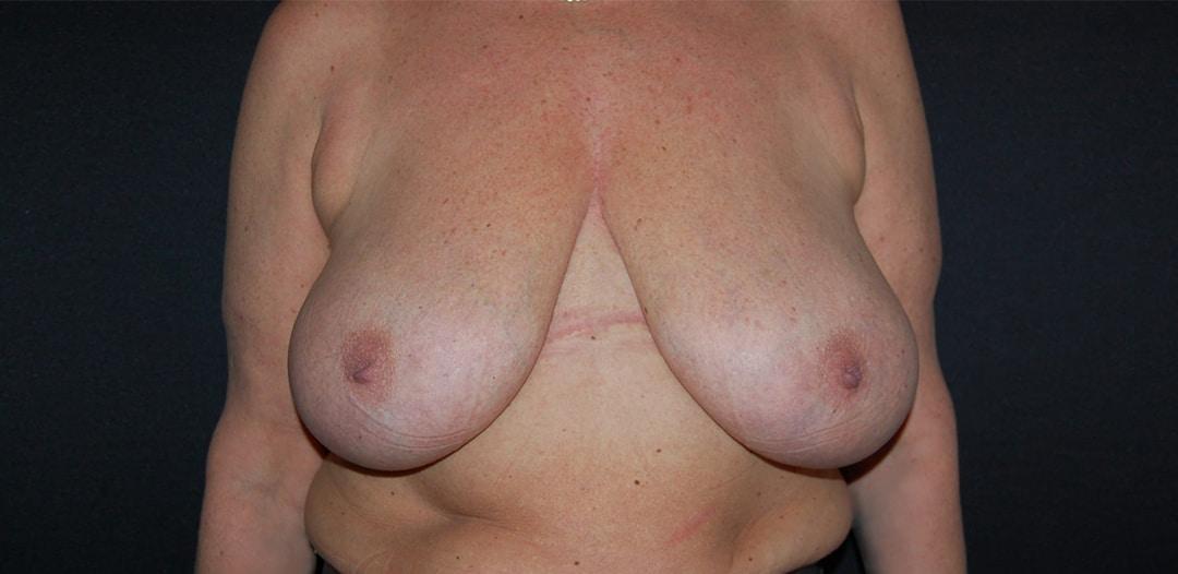 Kvinna 51 år, före bröstreduktion 500 gr/sida. Besvär från nacke och axlar försvann efter operation.