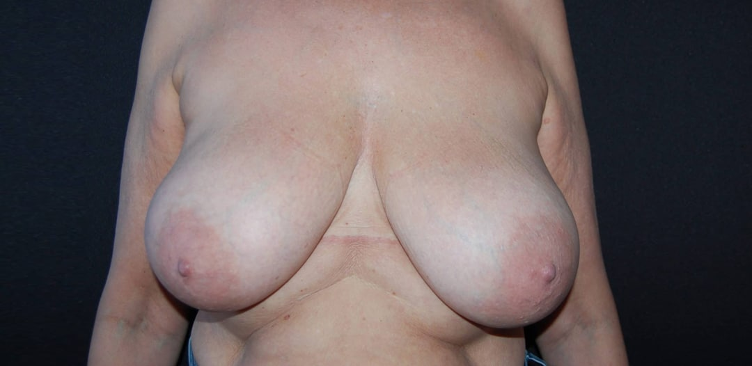 Kvinna 60 år, före bröstreduktion. Reducering med 355 gr/sida.