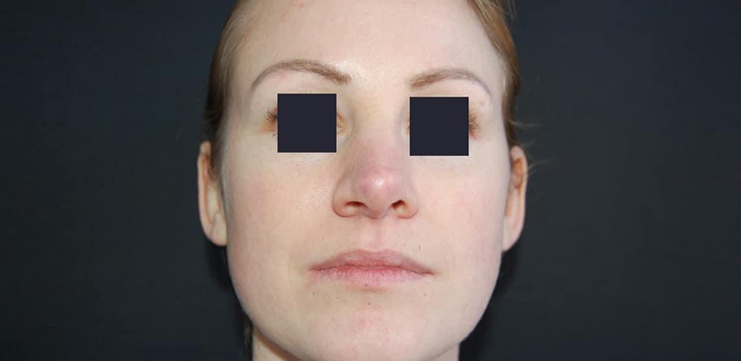 Kvinna 28 år, önskar minska bredden på brosknäsan och lyft tippen något - bild tagen efter operation samt framifrån