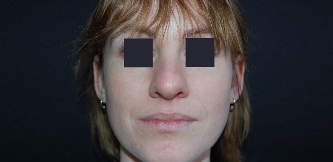 Kvinna 28 år, önskar minska bredden på brosknäsan och lyft tippen något - bild tagen före operation samt framifrån