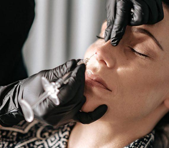 Fillers näsa korrigering