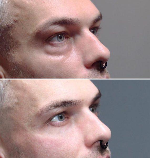 Före och efter en behandling av Tear trough med fillers