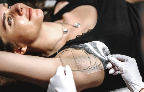 MiraDry Permanent Lukt- & Svettreducering
