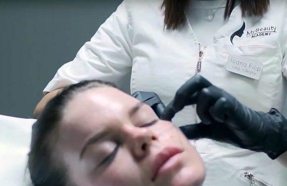 Radiesse hudföryngring