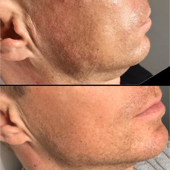 Resultat av Profhilo före och efter behandlingen